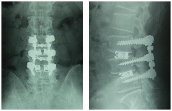 宗像整体−腰痛−ヘルニア−脊柱菅狭窄症