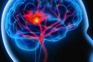 宗像整体−宗像リハビリ−脳卒中