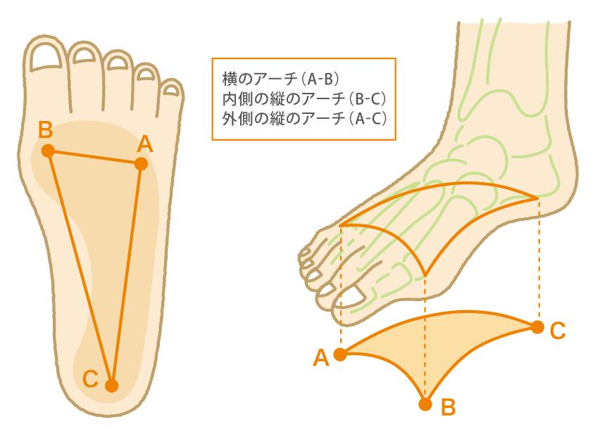 宗像整体−膝痛−扁平足−外反母趾−インソール