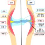 宗像整体−福津整体−膝痛−変形性膝関節症