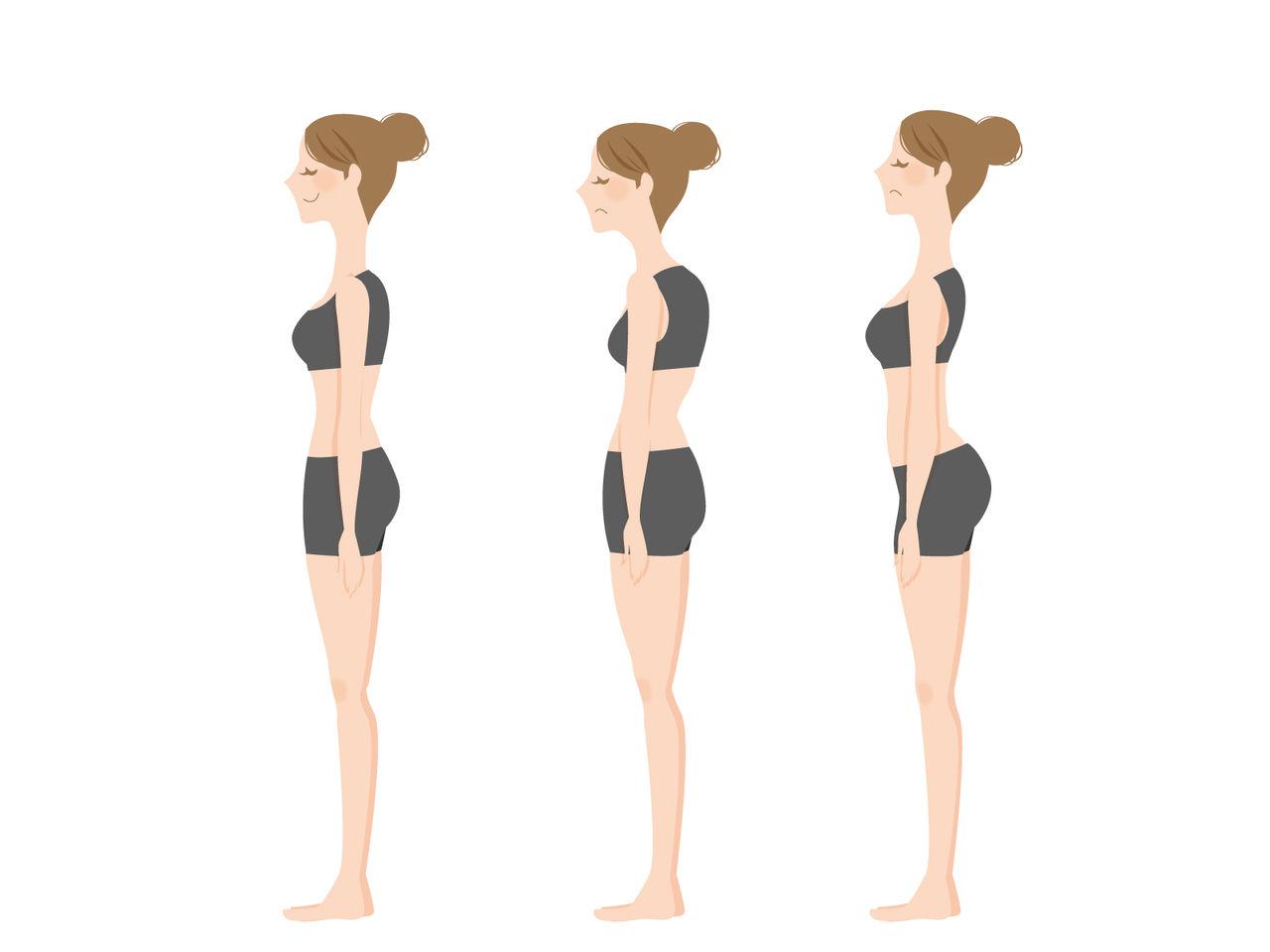 宗像整体−姿勢−腰痛