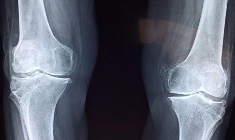 宗像整体−変形性膝関節症−レントゲン